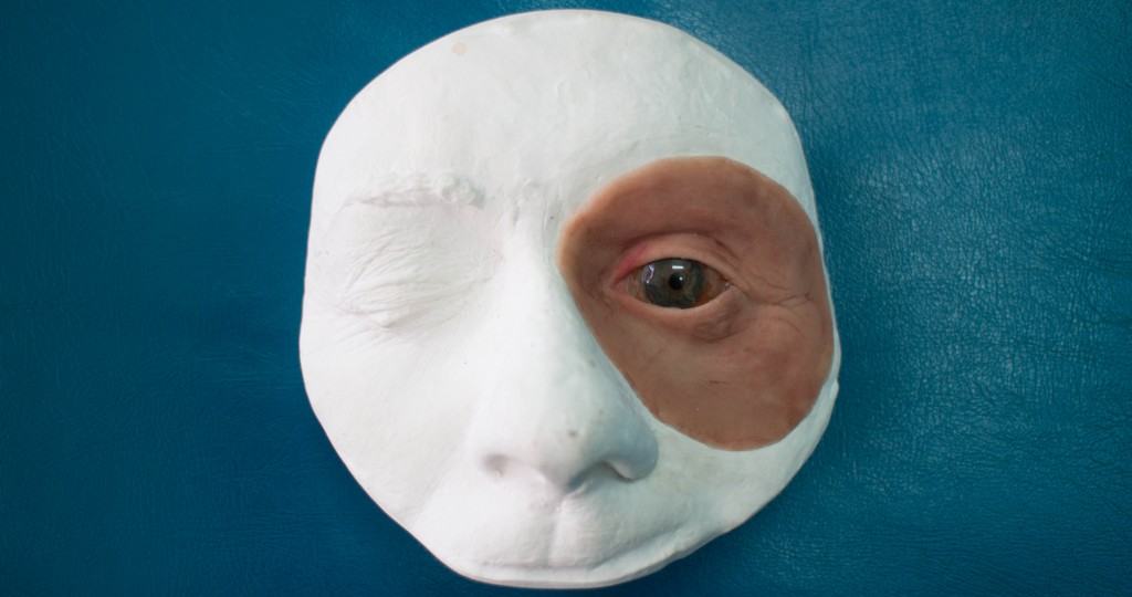 Facial Prosthetics